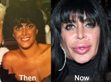 big ang before the plastic surgery photo - 1