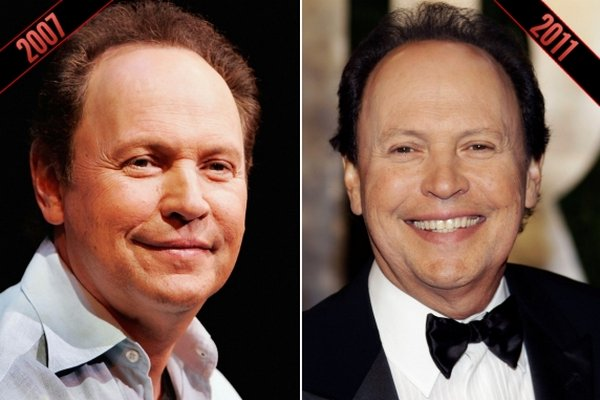 billy crystal plastic surgery photo - 1