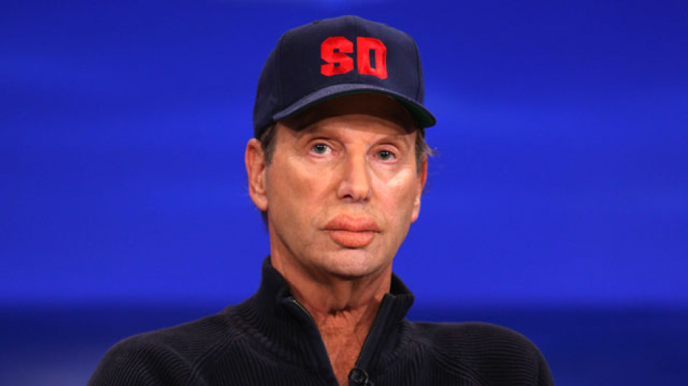 bob einstein plastic surgery before and after photo - 1