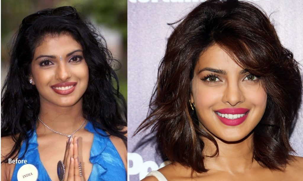 bollywood actresses plastic surgery photo - 1