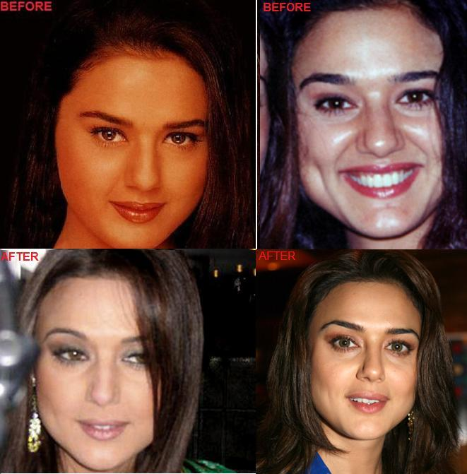 bollywood plastic surgery photo - 1