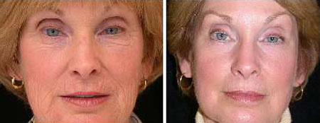 boston plastic surgery reviews photo - 1