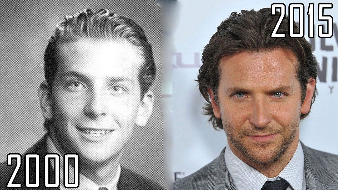bradley cooper plastic surgery photo - 1