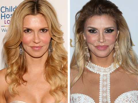 brandi glanville before plastic surgery photo - 1