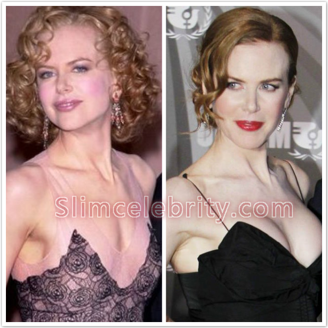 breast plastic surgery before and after photo - 1