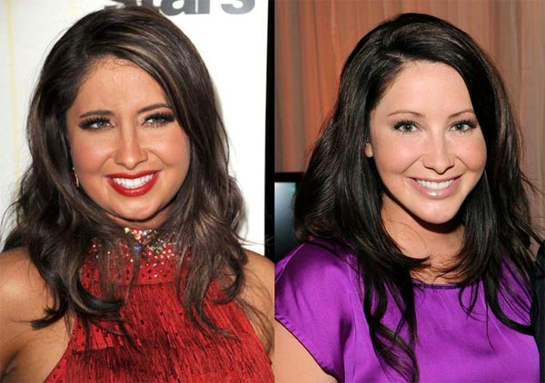 bristol palin plastic surgery photo - 1