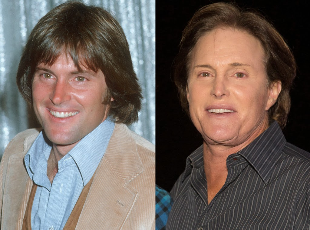 bruce jenner plastic surgery photo - 1