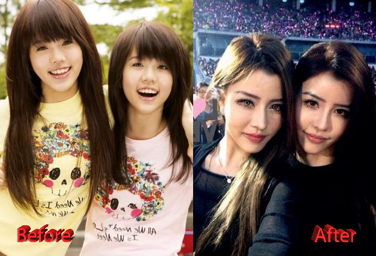 by2 plastic surgery photo - 1