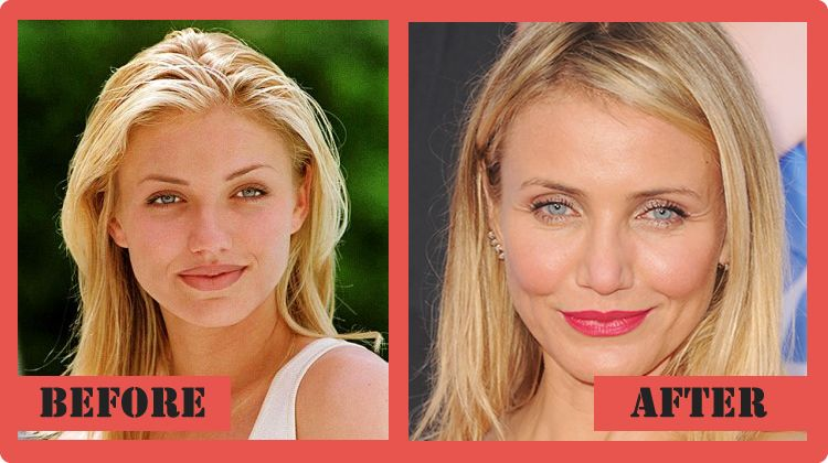 cameron diaz plastic surgery photo - 1