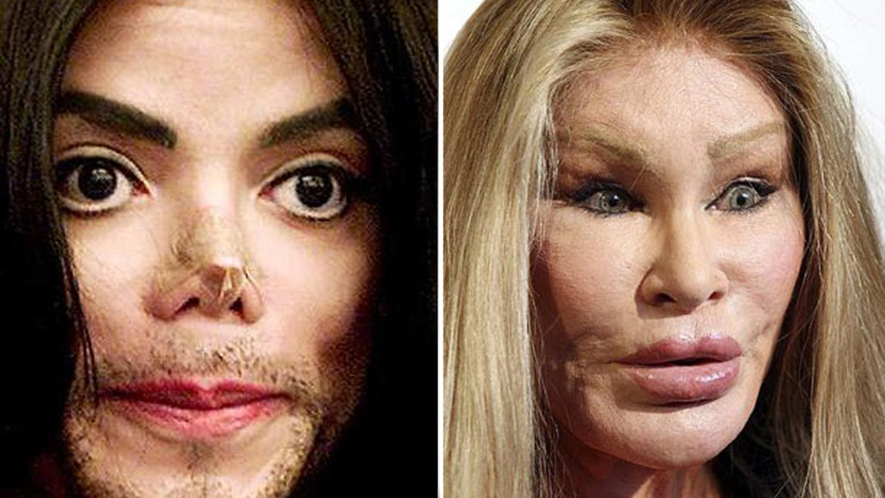celebrities plastic surgery photo - 1
