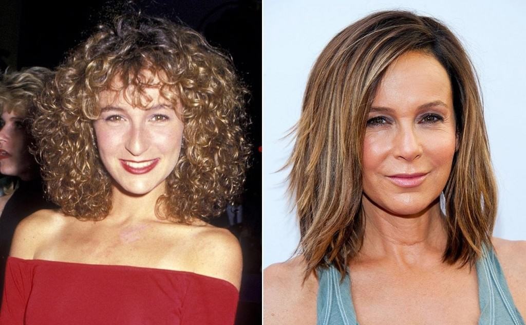 celebrities with bad plastic surgery photo - 1