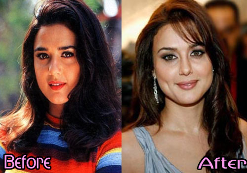 celebrities with plastic surgery photo - 1