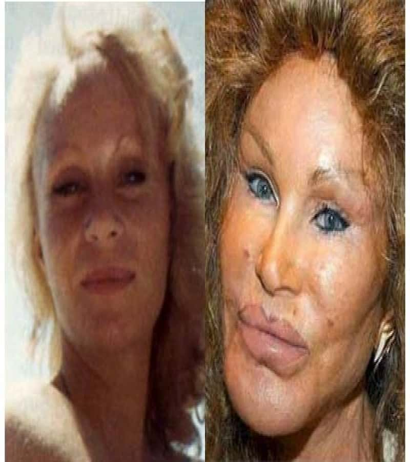 celebrity bad plastic surgery photo - 1
