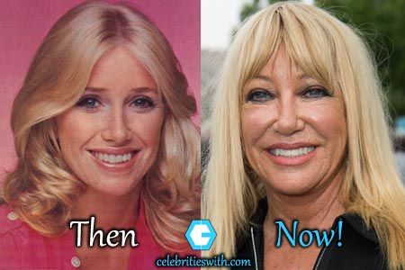 charo plastic surgery photo - 1