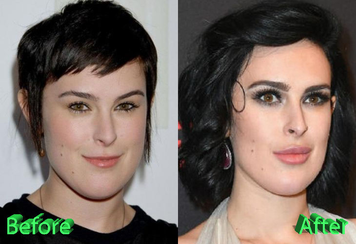chin reduction plastic surgery photo - 1