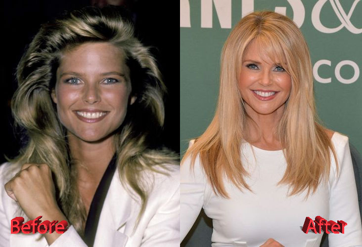christie brinkley plastic surgery 2016 photo - 1