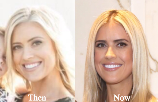 christina el moussa plastic surgery before and after photo - 1