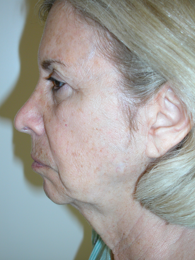 coral gables cosmetic surgery photo - 1