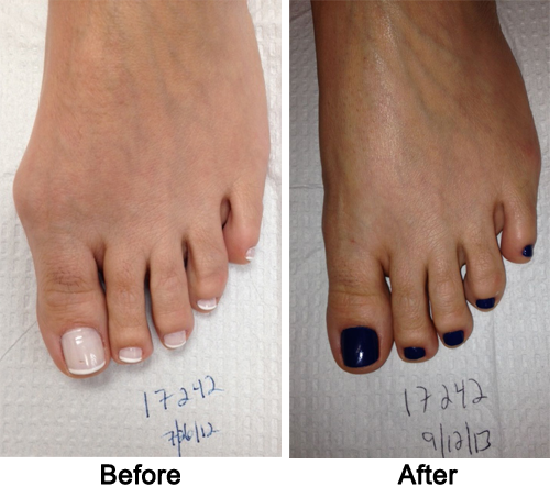 cosmetic foot surgery before and after photo - 1