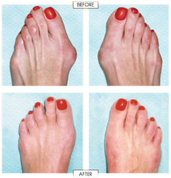 cosmetic foot surgery near me photo - 1
