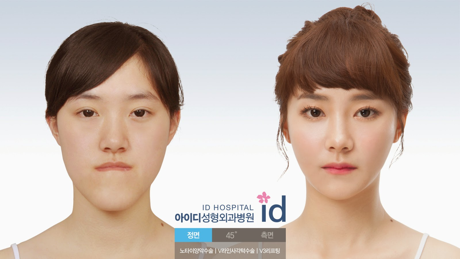 cosmetic jaw surgery photo - 1