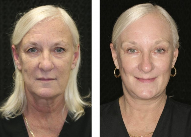 cosmetic neck surgery photo - 1