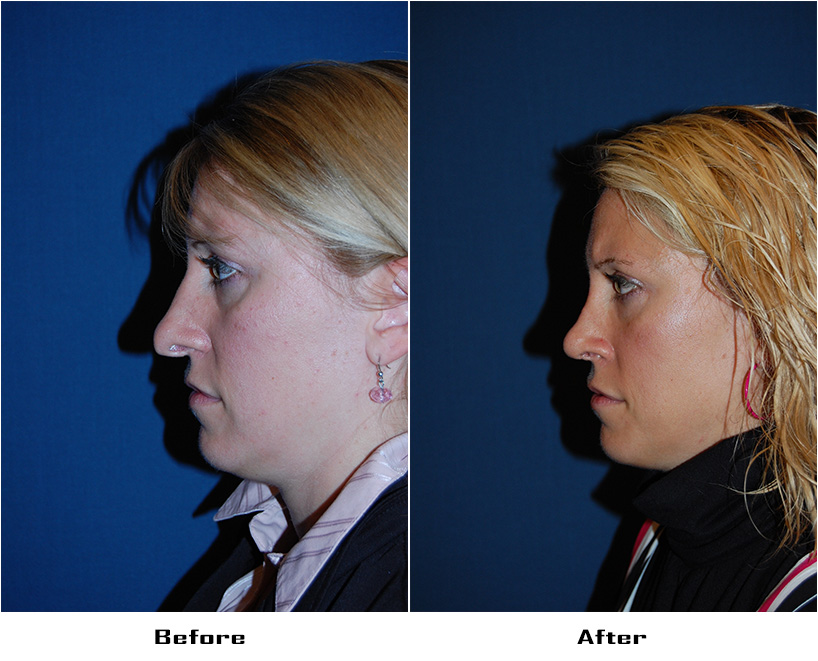 cosmetic surgery charlotte nc photo - 1
