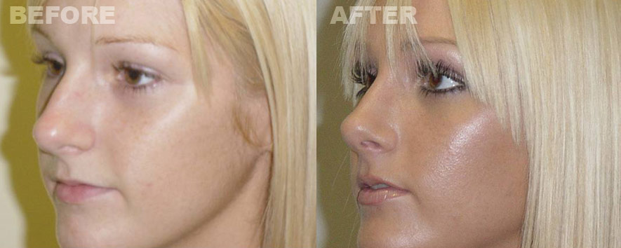 cosmetic surgery photographs photo - 1