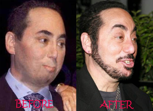 cosmetic surgery vs plastic surgery photo - 1