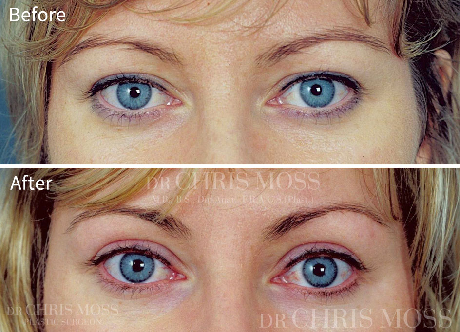cost of cosmetic eye surgery photo - 1