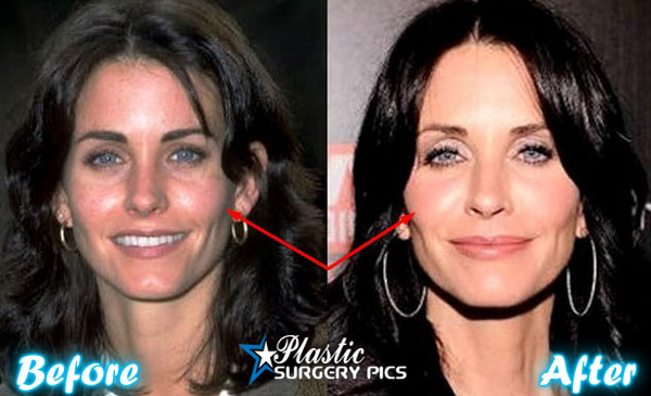 courteney cox plastic surgery photo - 1