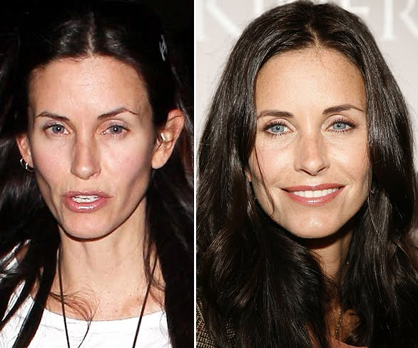 courteney cox plastic surgery pictures photo - 1