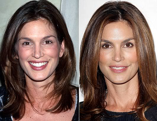crawford plastic surgery photo - 1