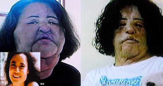 crazy plastic surgery photo - 1