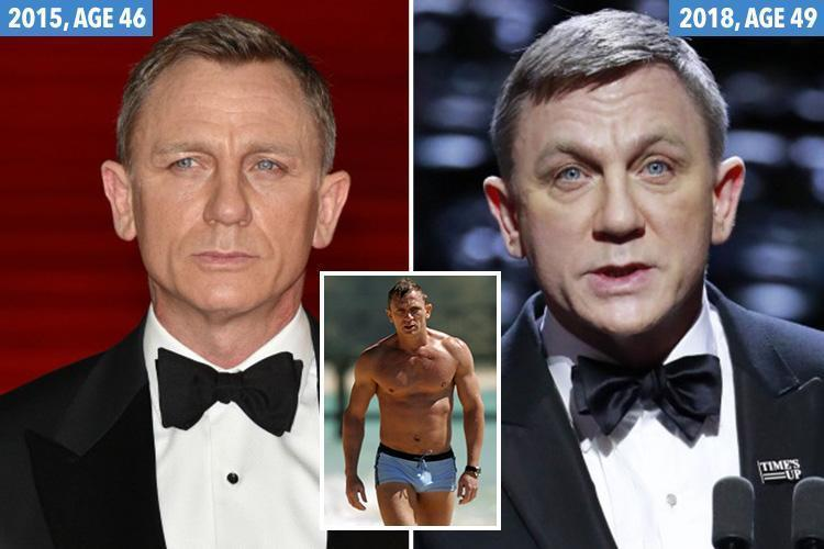 daniel craig plastic surgery photo - 1