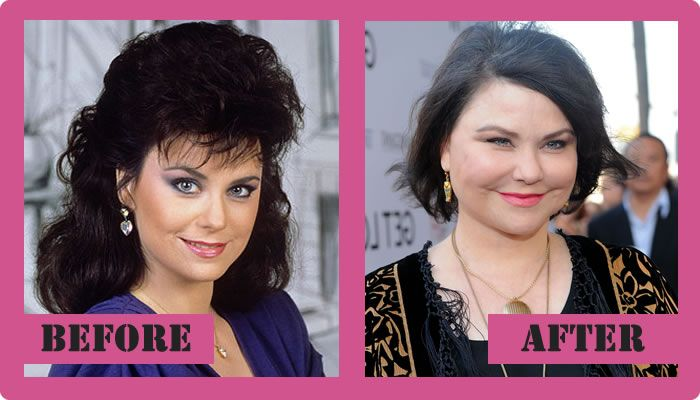 delta burke plastic surgery photo - 1