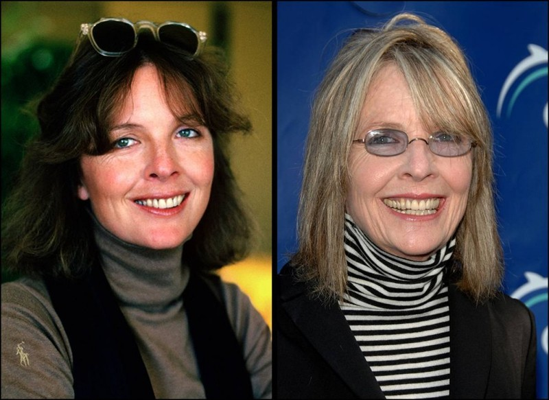 diane keaton plastic surgery photo - 1