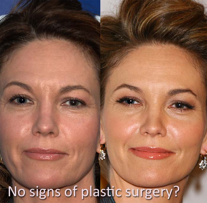 diane lane plastic surgery photo - 1