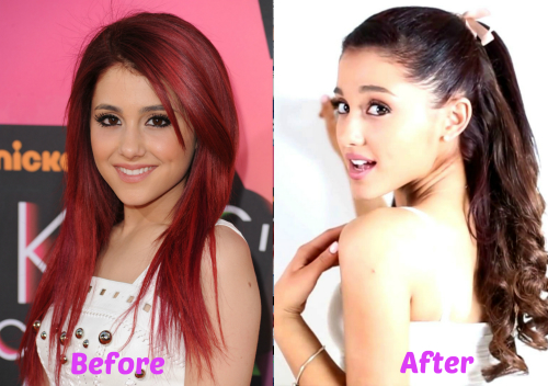 did ariana grande have plastic surgery photo - 1