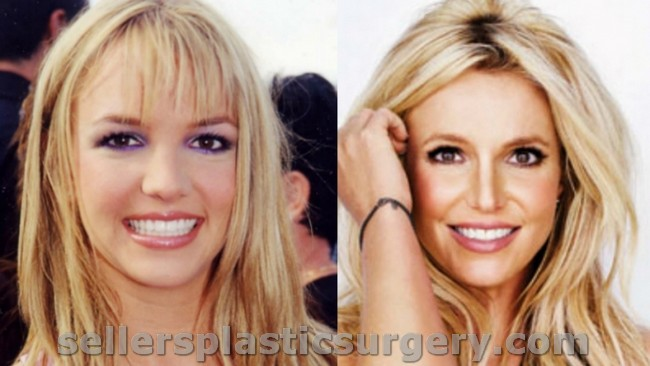 did britney spears get plastic surgery photo - 1
