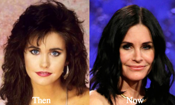 did courtney cox have plastic surgery photo - 1