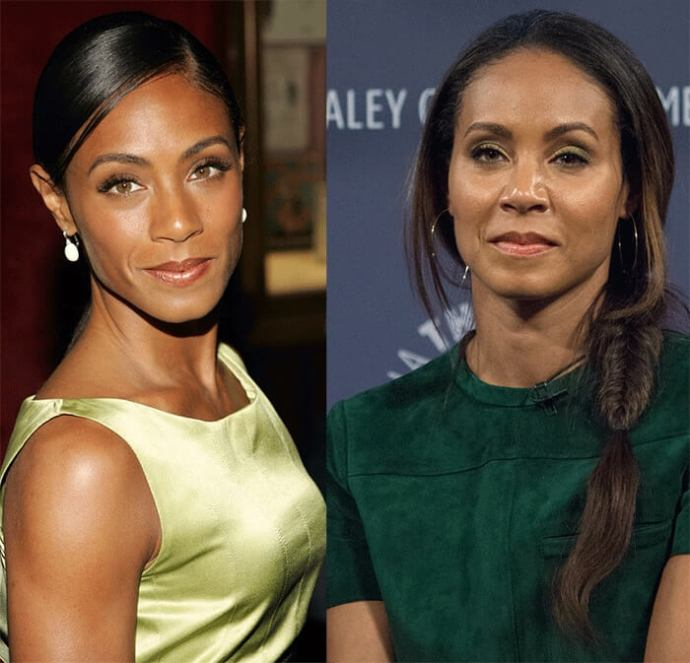 did jada pinkett smith have plastic surgery photo - 1