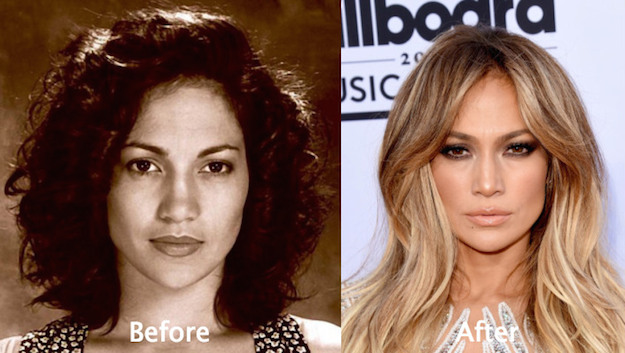 did jennifer lopez have plastic surgery photo - 1