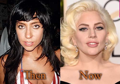 did lady gaga have plastic surgery photo - 1