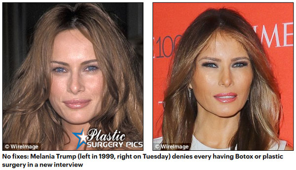 did melania trump have plastic surgery photo - 1