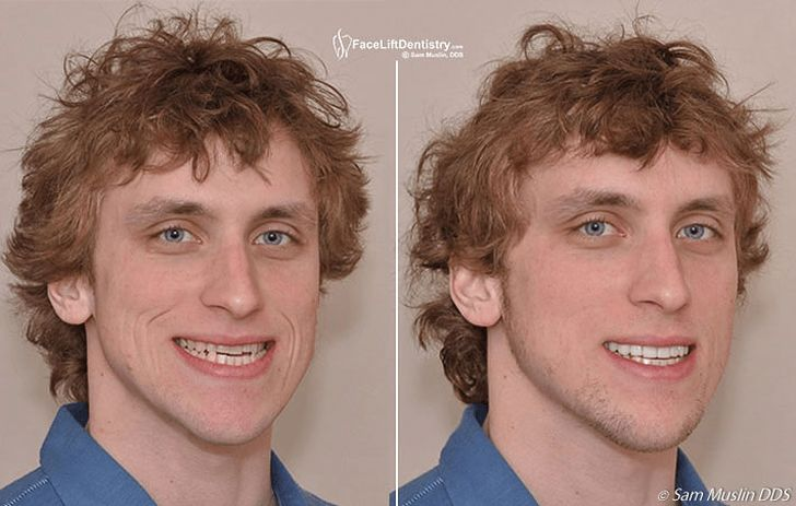 does plastic surgery hurt photo - 1