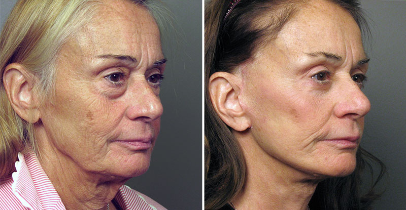 does tricare cover plastic surgery photo - 1