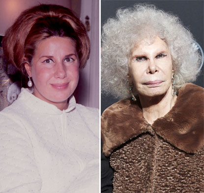 duchess of alba plastic surgery before and after photo - 1