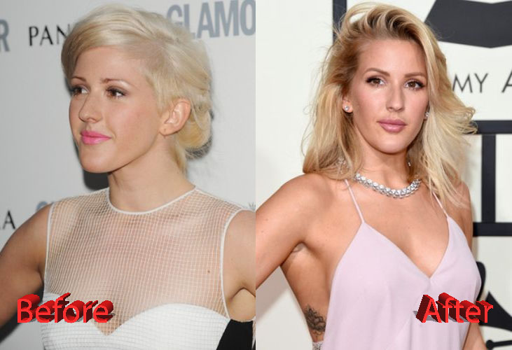 ellie goulding plastic surgery photo - 1