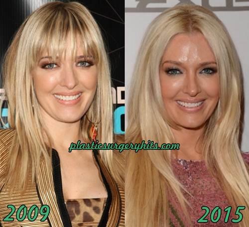 erika jayne plastic surgery photo - 1